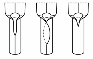 Illustration of sheath types with the first showing the split and margins are separarated, the second shows the split with the margins overlapping and the third is closed.